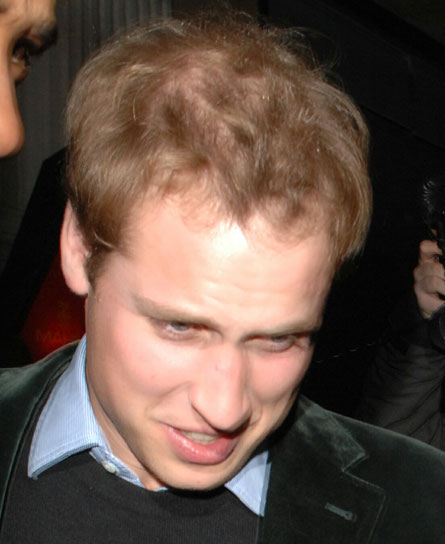 prince-william-hair-loss