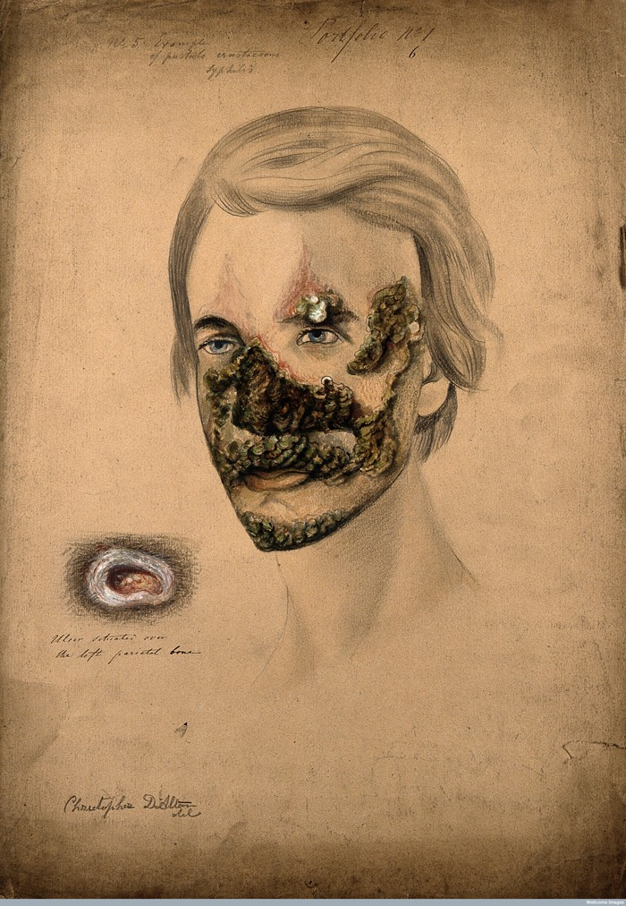 V0009875 Syphilis; severe lesions on face, 1855